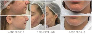 Resultaten na 1 acne peeling De Online Kliniek