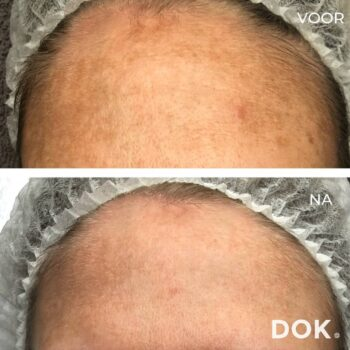 Voor en na foto | huidverbetering | peeling | acnebehandeling | pigment | pigmentatie