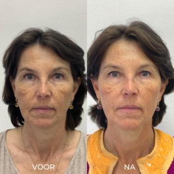 Voor en na foto's 2 rimpel peeling De Online Kliniek Den Haag
