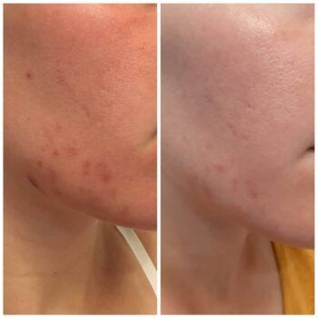 Voor en na 1 microneedling acne littekens verminderen