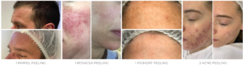 Peeling behandelingen bij De Online Kliniek Den Haag Rimpels en Acne Littekens Verminderen