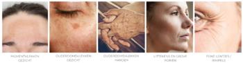 HUIDINDICATIES tca peeling behandelingen De Online Kliniek DOK
