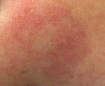 rosacea op wang rode huid rosacea verhelpen