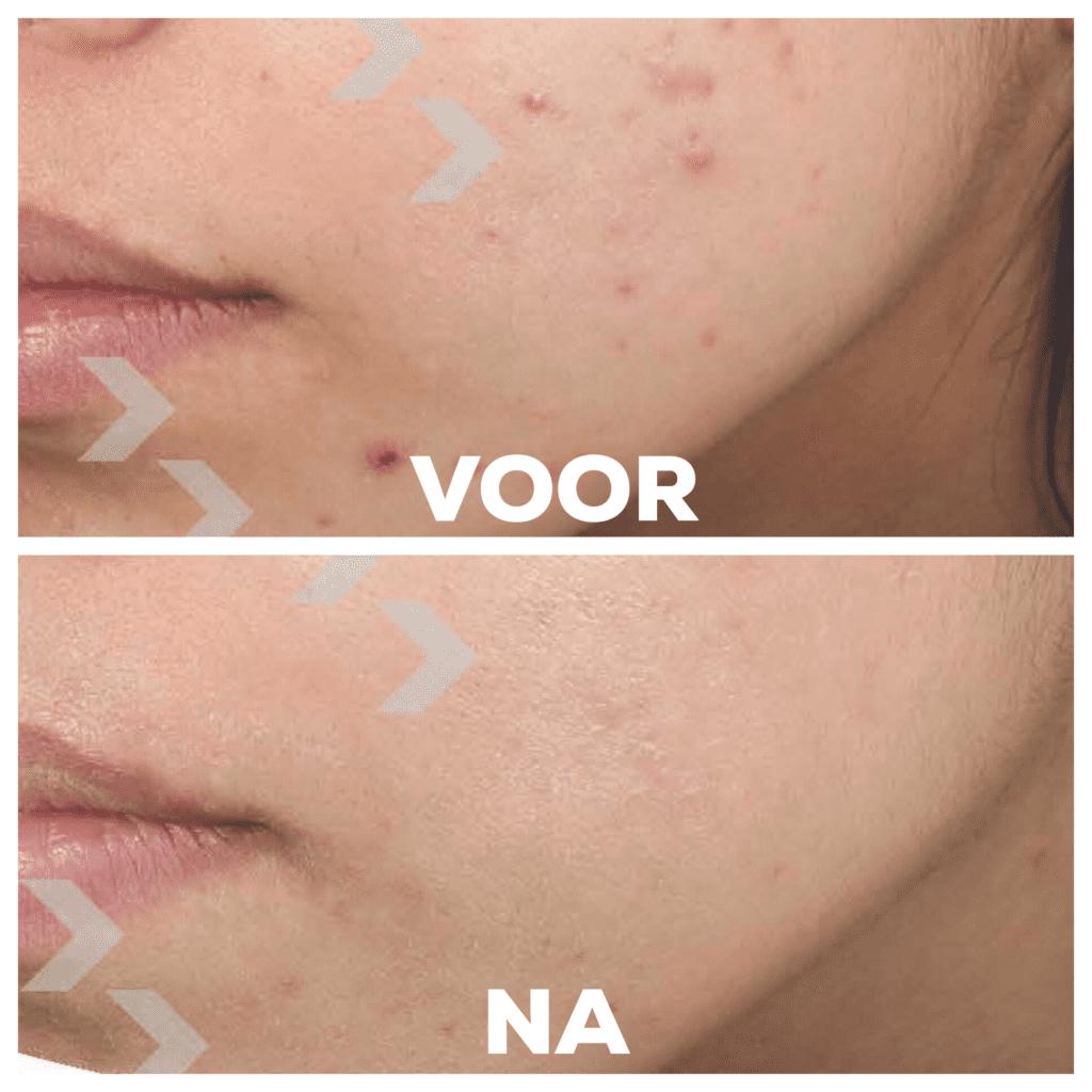Voor en na foto | huidverbetering | peeling | acnebehandeling | acne