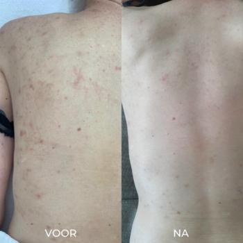 Voor en na 3 peelings acne rug verminderen