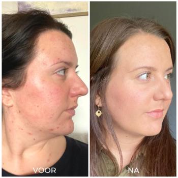 Voor en na acne verminderen met producten (1)