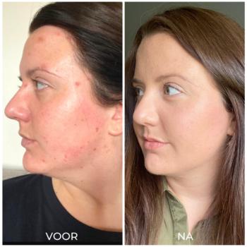 Voor en na acne verminderen met producten