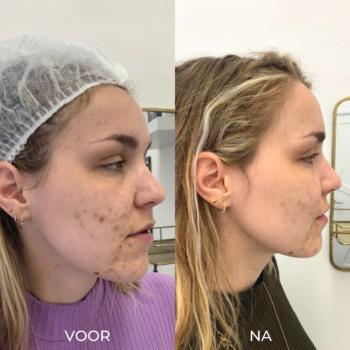 Voor en na foto's behandelingen - 1 acne peeling Den Haag