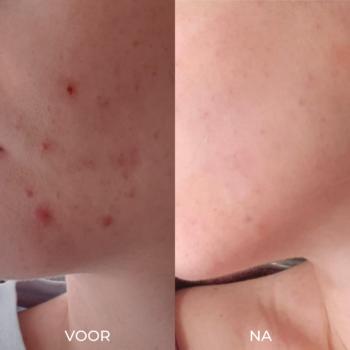 Voor en na foto's acne verminderen met 5 producten