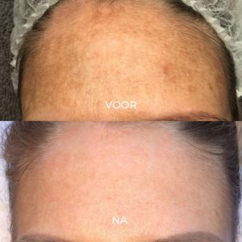 Voor en na 1 peeling pigment