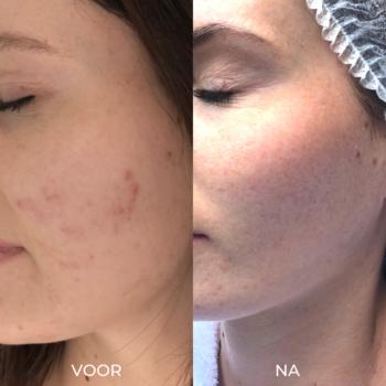 Voor en na foto's acne behandeling De Online Kliniek in Den Haag