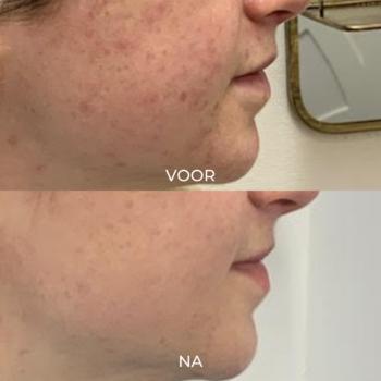 voor en na 1 peeling behandeling acne verminderen De Online Kliniek