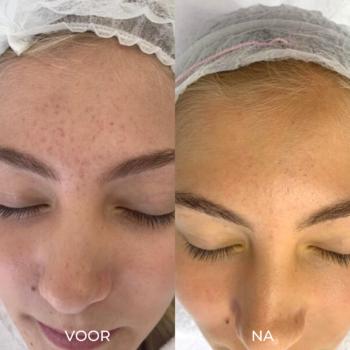 Voor en na acne littekens behandeling 1 microneedling