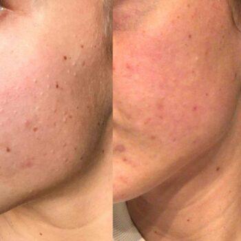 acne behandeling De Online Kliniek voor en na