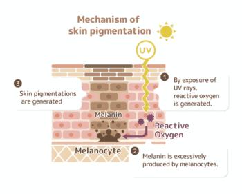 Wat gebeurt er in de huid bij de aanmaak van pigmentvlekken?