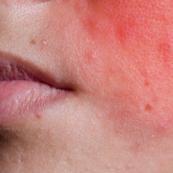 red inflamed skin psoriasis