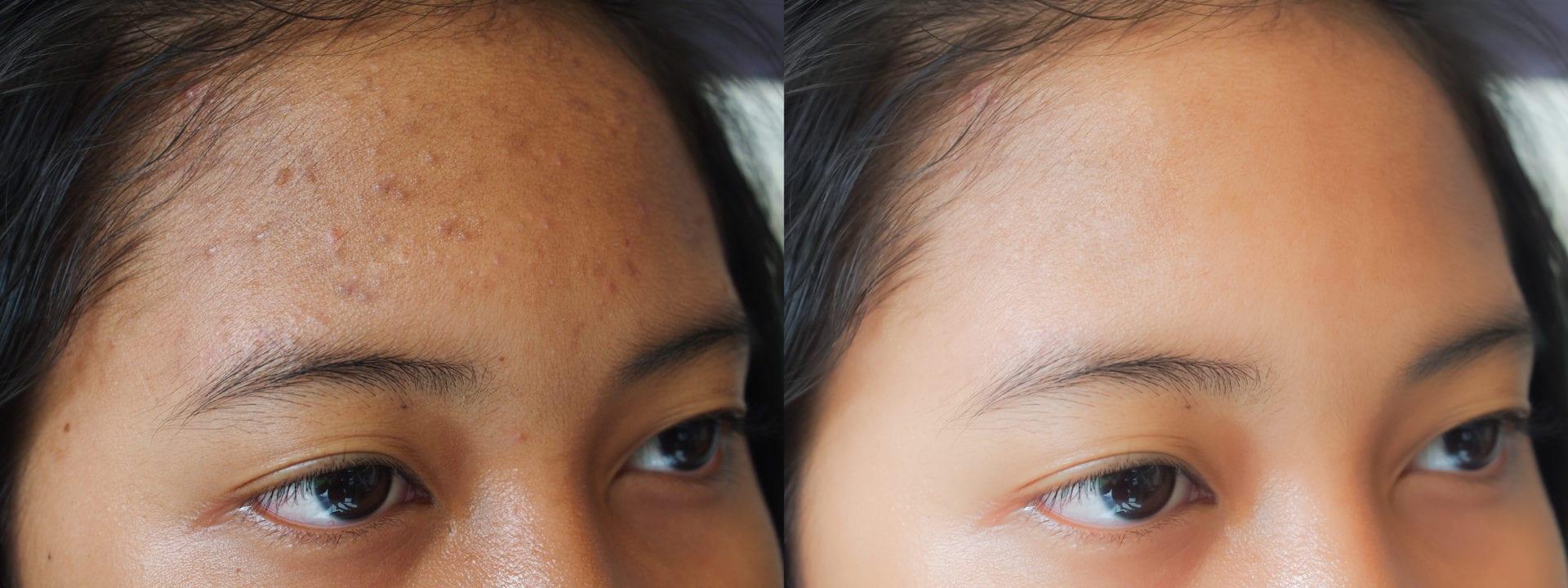 Voor en na foto Acne behandeling Aziatische huid