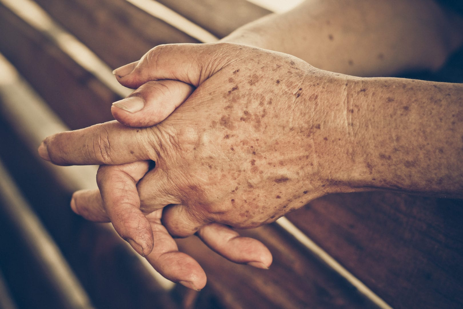 pigment op handen, ouderdomsvlekken
