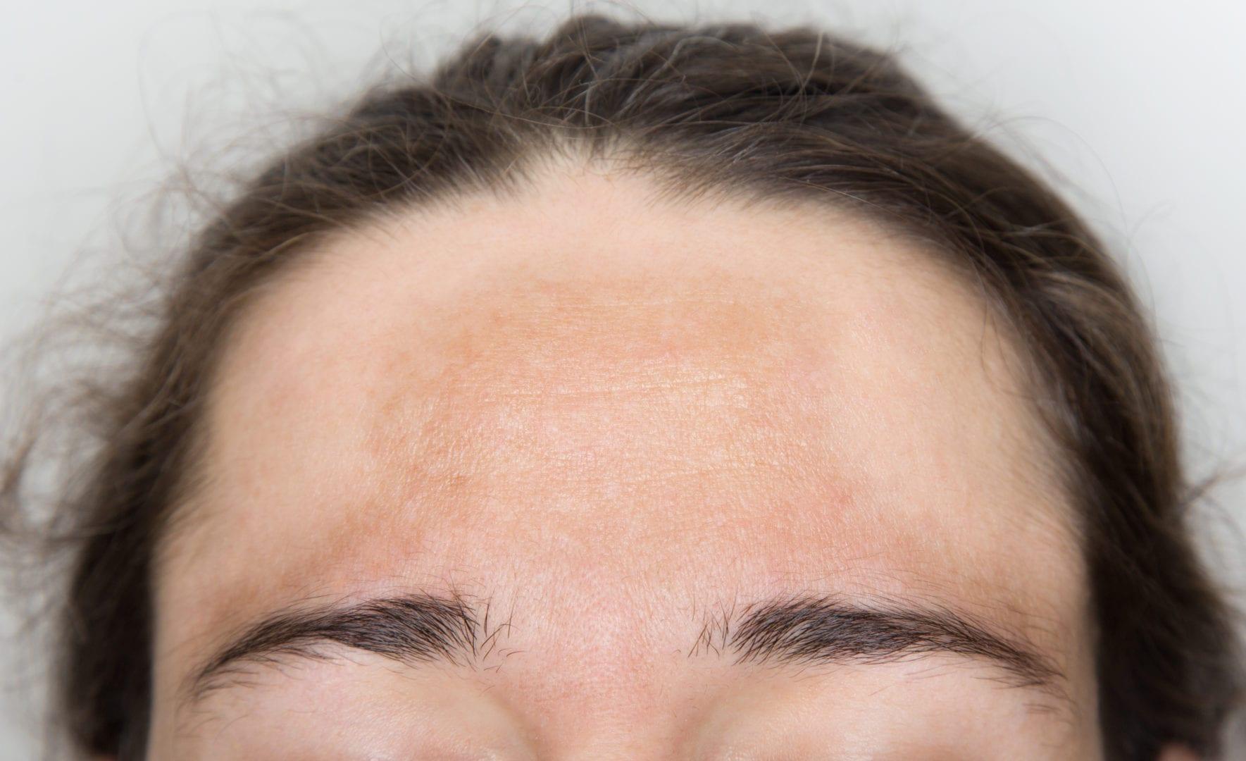 Hyperpigmentatie melasma in het gezicht