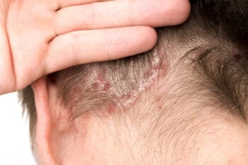 psoriasis vulgaris in de haargrens