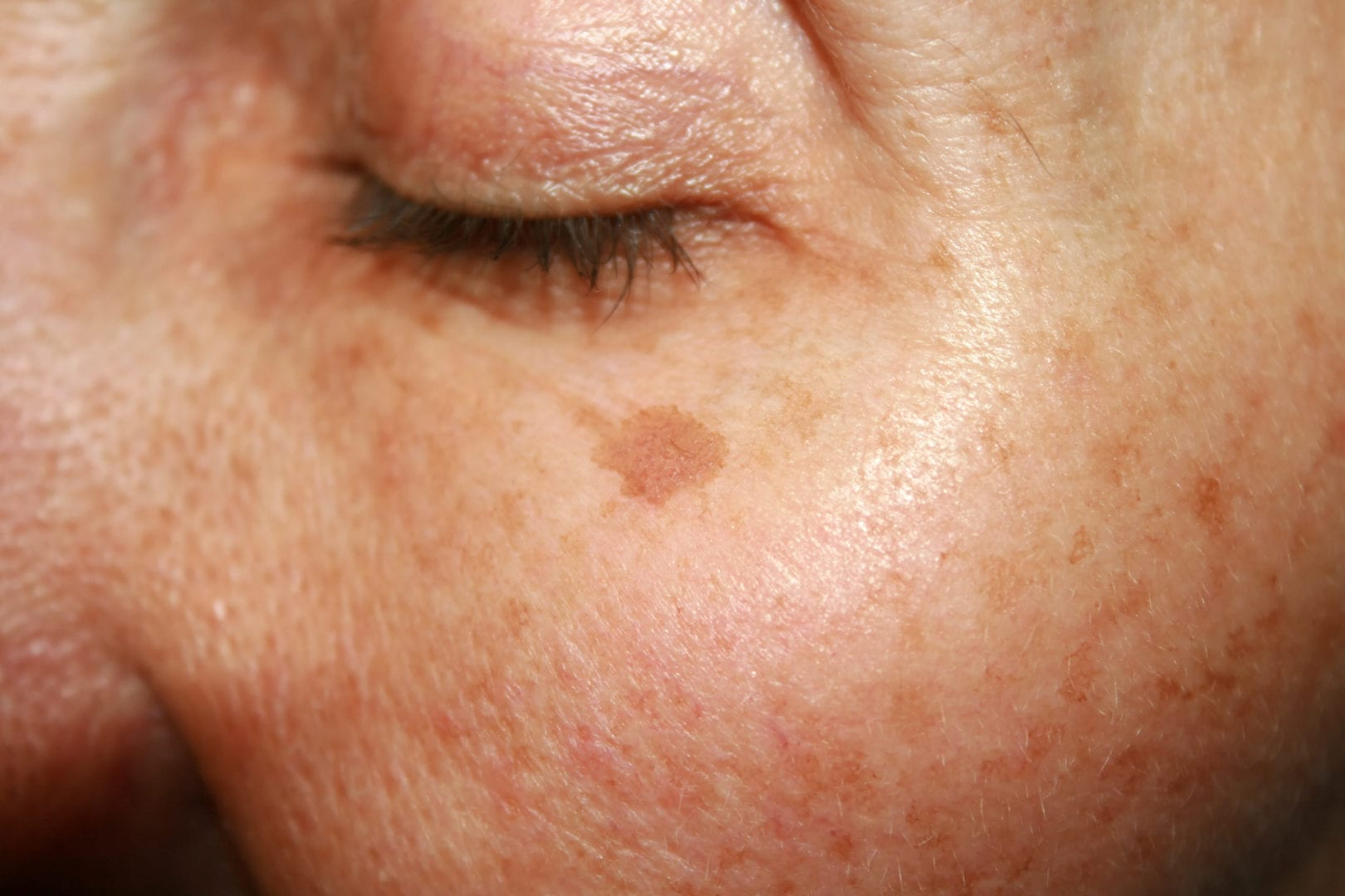 pigment in gezicht, ouderdomsvlekken