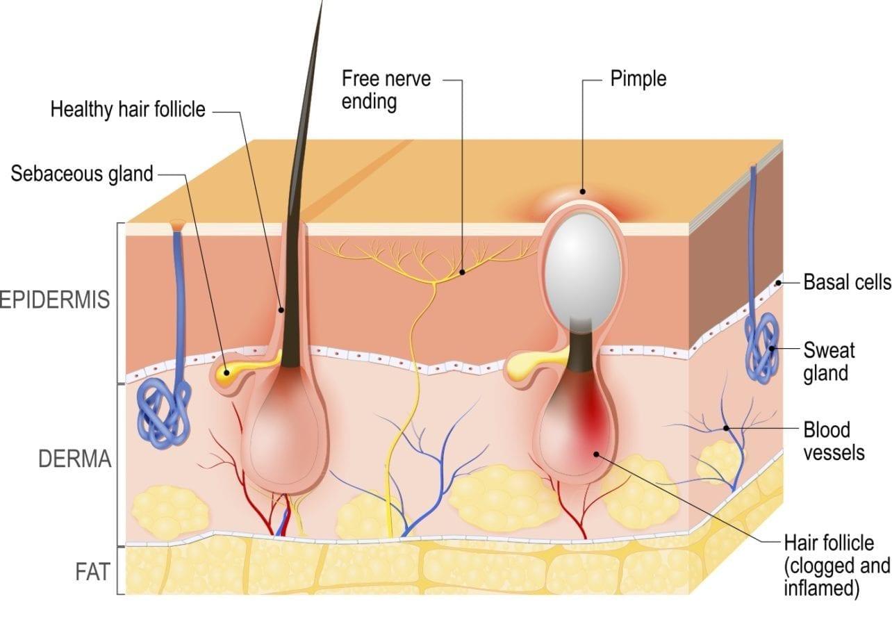 Ontsteking van de huid | huid anatomy acne